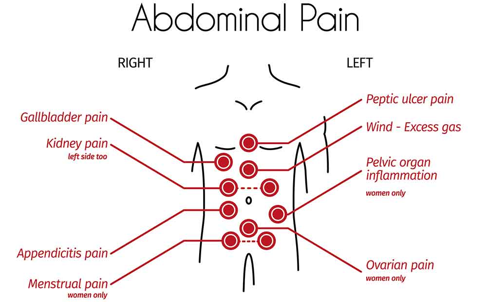 Abdominal Pain: Everything You Need to Know About Abdominal Pain